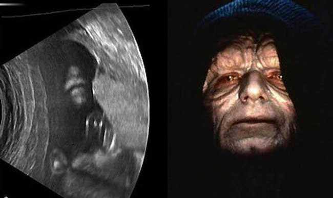 Creepy Ultrasound Pictures
