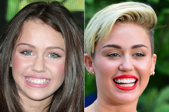 Celebrities with Fake Teeth